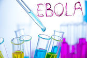 Laboratory examination of Ebola — Stock Photo
