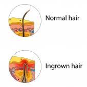 Ingrown hair — Stock Vector