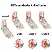 Grades of ankle sprains — Stock Vector