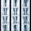 ������, ������: X ray veins radiography