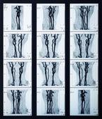 X-ray veins radiography — Stock Photo