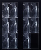 X-ray spine and neck radiography — Stock Photo