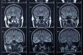 X-ray head and brain radiography — Stock Photo