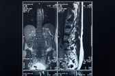 X-ray spine radiography — Stock Photo