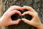 Two hands with wedding rings — Stock Photo