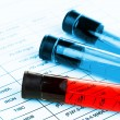 Blood in test tubes and results close up — Stock Photo #55733417