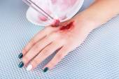 Injured hand with blood on table in hospital — Stock Photo