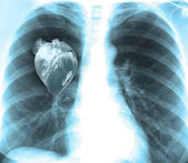 Human x-ray with heart — Stock Photo