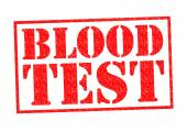 BLOOD TEST — Stock Photo