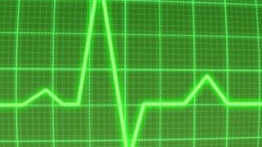 EKG pulse heartbeat monitor — Vídeo stock