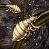 Lice In Hair — Stock Photo