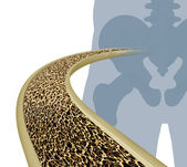Osteoporosis Medical Illustration — Foto Stock