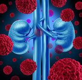 Kidney Cancer — Stock Photo