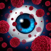 Eye Cancer — Stock Photo