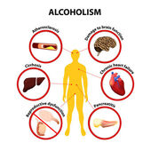 Alcoholism. infographic — Stock Vector