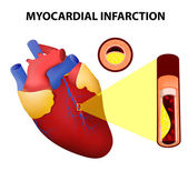 Myocardial infarction — Stock Vector
