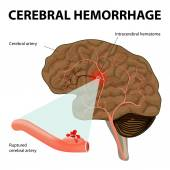 Cerebral hemorrhage — Stock Vector