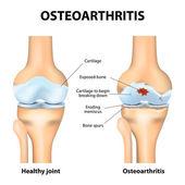 Osteoarthritis or arthritis — Stok Vektör