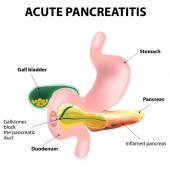 Acute pancreatitis — Stock Vector