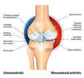 Comparison of Osteoarthritis and Rheumatoid Arthritis — Wektor stockowy