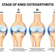 Stages of knee Osteoarthritis (OA). — Stock Vector #55598477