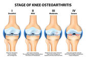 Stages of knee Osteoarthritis (OA). — Vector de stock