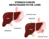 Stomach cancer Metastasized to the  liver — Vetorial Stock
