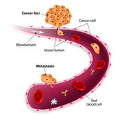 Cancer cells, cancer foci and Metastases — Wektor stockowy
