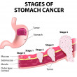 ������, ������: Staging of stomach cancer