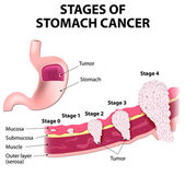 Staging of stomach cancer — Stock Vector