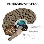 Parkinson's Disease — Stock Vector