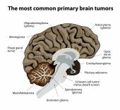 The most common primary brain tumors — Stock Vector