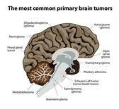 The most common primary brain tumors — Stock Vector