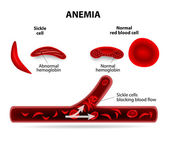 Anémie — Stock vektor