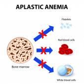 Dále aplastickou anémii — Stock vektor