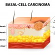 Постер, плакат: Basal cell carcinoma or basal cell cancer