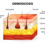 Demodicosis. Demodex mite — Stock Vector #62046543
