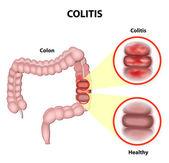 Colitis — Wektor stockowy