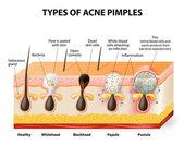 Tipos de granos de acné — Vector de stock