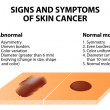 Постер, плакат: Signs and symptoms of skin cancer