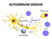Autoimmune Disease. The mechanisms of neuronal damage in multipl — Stock Vector