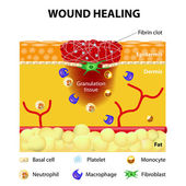 Process of wound healing — Stock Vector
