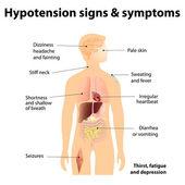 Hypotension signs & symptoms — Stock Vector