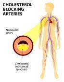 Cholesterol blocking artery — Stock Vector