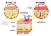 Dermatitis or eczema — Stock Vector