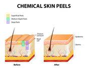 Chemical peels — Stock Vector