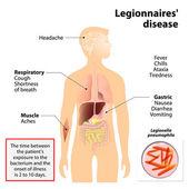 Legionnaires disease or legionellosis — Stock Vector