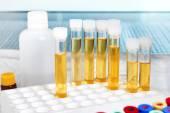 Analysis of urine in lab — Stock Photo
