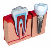 Anatomy of healthy teeth and dental implant in jaw bone. — Stock Photo