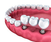 Dental implants, crowns and pins isolated on white — Stock Photo